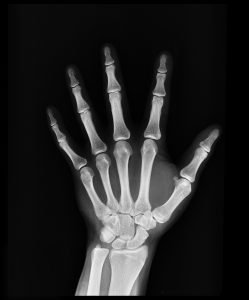 An x-ray of a left hand
